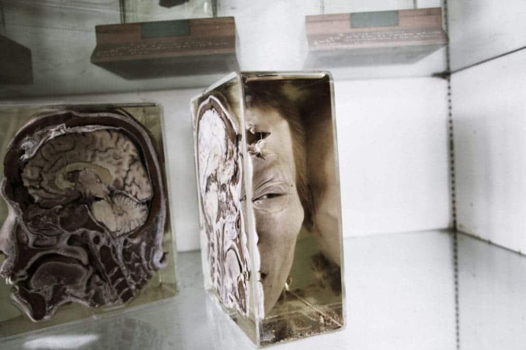 Cose da fare e vedere a bangkok museo Siriraj Medical Museum Pictures 5