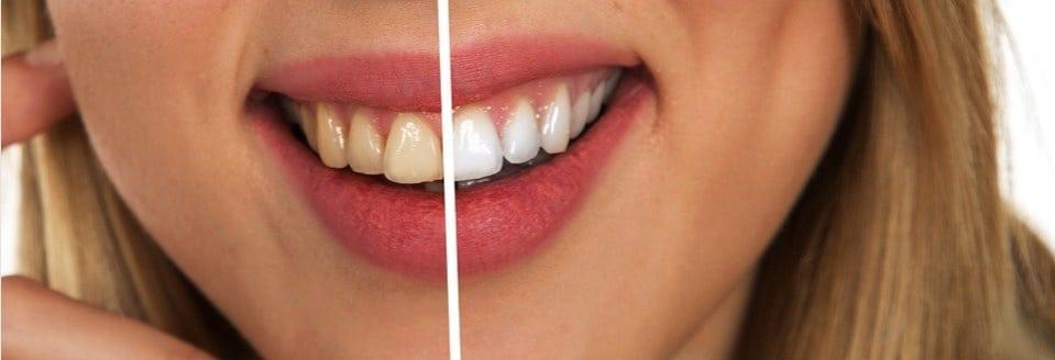 Come sbiancare i denti prima e dopo