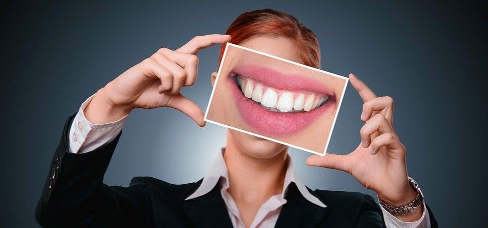 Come ottenere denti più bianchi